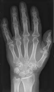 Hände Skelett